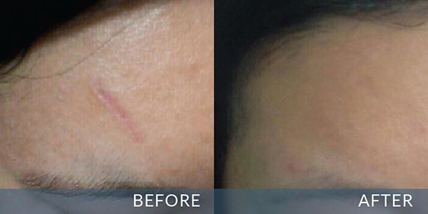 Trước và sau khi sử dụng sản phẩm